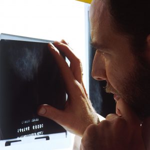 Reviewing_mammogram